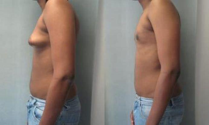 EFECTELE DAUNATOARE a consumului de CARNE DE PUI injectata cu HORMONI!2