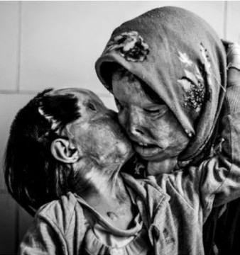 Fotografia care a lasat FARA CUVINTE o lume intreaga! DOVADA ca dragostea invinge durerea orice ar fi!